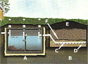 Typical septic diagram